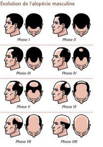 évolution de l'alopécie